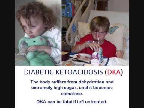 Juvenile Diabetes:  We defeated Diabetic Ketoacidosis