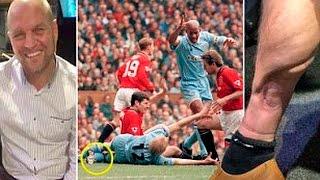 david busst reveals astonishing horror leg break almost 20 years ago