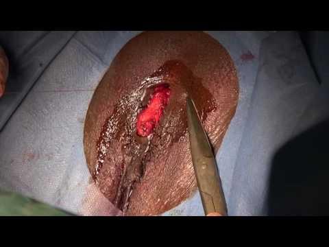 CeMAViE - Opération de reconstruction du Clitoris après une mutilation génitale