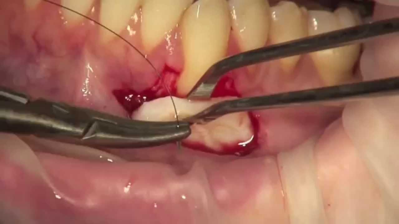 """Résultat de recherche d'images pour """"greffon gencive dentaire"""""""