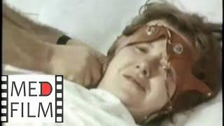 Раскрытие матки. Электроанальгезия. Предродовая палата © Electroanalgesia, uterus opening