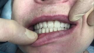 Верните все зубы всего за 1 день! По концепции лечения All‑ON‑4 с Nobel Biocare.