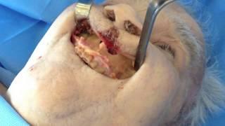 Bases anatomiques de la chirurgie orthognathique