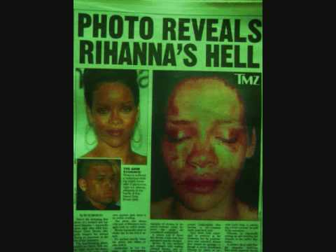 Battered Rhianna Screaming + Chris Brown's Arrest/Jail Mug Shot