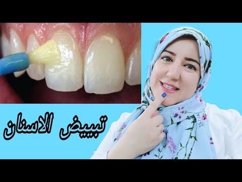 وصفة رائعة فى تبيض الأسنان والحصول على نتائج سريعة فى تبيض الأسنان