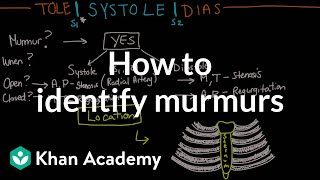 How to identify murmurs