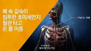 폐 속 깊숙이 침투한 초미세먼지, 혈관 타고 온 몸 이…