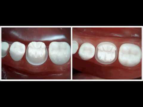 Download Metal ceramic crown preparation   for dental students     YouTube