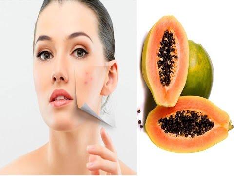 कील मुहासों का 7 दिनों में नामो निसान मिटाए चेहरे पर कील मुहासों का घरेलु इलाज