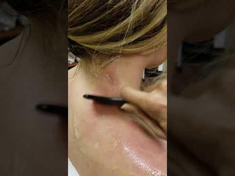 Gua Sha Therapy for Whiplash Injury, Glendale AZ