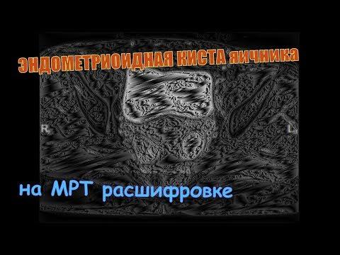 ЭНДОМЕТРИОИДНАЯ КИСТА яичника и ЭНДОМЕТРИОЗ малого таза на МРТ расшифровке