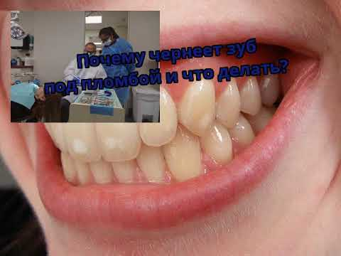 Зуб под пломбой почернел и болит