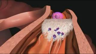 La maladie inflammatoire pelvienne expliquée en vidéo