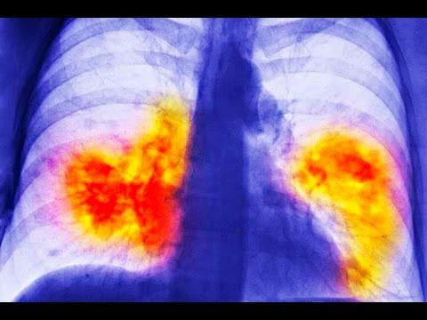 Lung cancer powerpoint presentation youtube lung cancer powerpoint presentation toneelgroepblik Gallery