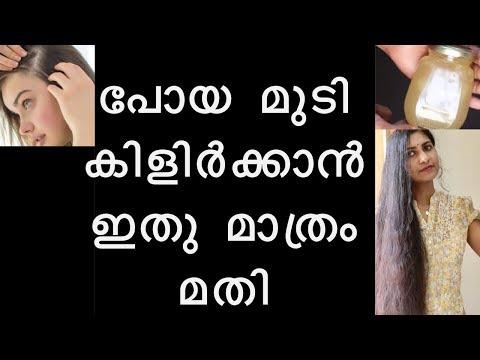കൊഴിഞ്ഞു-പോയ-മുടി-കിളിർക്കാൻ-ഇതുമതി-|how-to-regrow-hair-faster-&-thicker-in-1-week-malayalam
