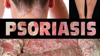 Penyakit Autoimun Pada Kulit : Psoriasis.