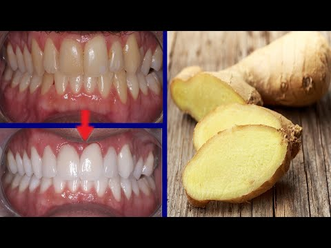 Magical Teeth Whitening Remedy, Get whiten Teeth at home in 4 minutes