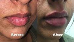 Lip Augmentation Using Juvederm Ultra Plus XC Performed By Dr. Joshua D. Zuckerman, MD, FACS