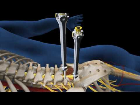 Lumbar Fusion of L5 S1 Animation