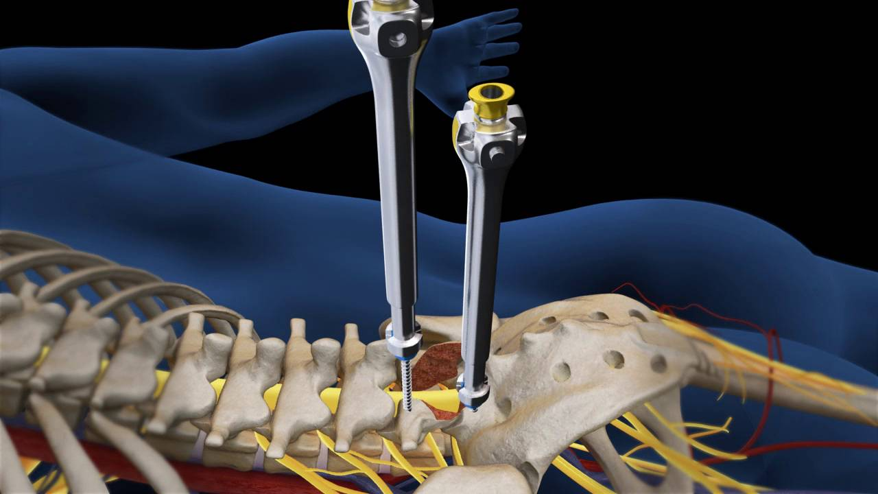 Download Lumbar Fusion of L5 S1 Animation