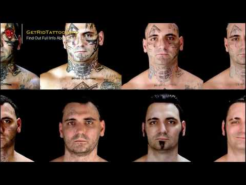 laser-tattoo-removal-aftercare-–-all-you-need-to-learn-about-tattoo-removal.-page-teaser
