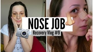 REMOVING MY CAST! ♡ Nose Job Recovery Vlog #9
