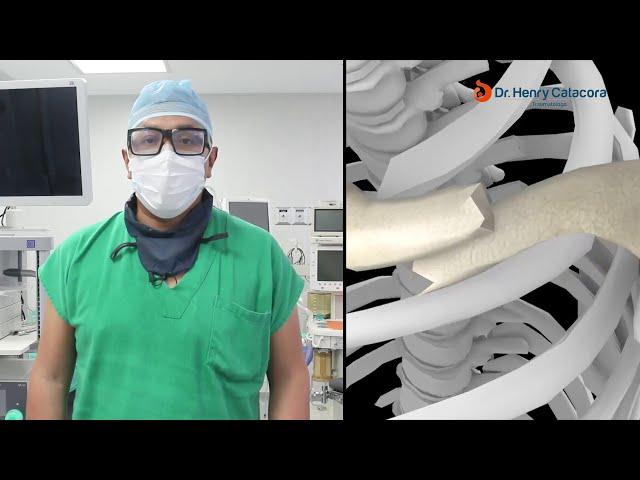 Cirugía de Clavícula con implante - Dr. Henry Catacora - Traumatólogo