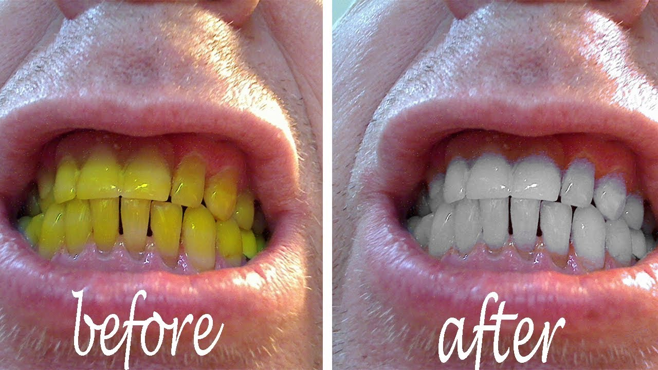 Teeth Whitening Whiten Teeth Easily At Home With Baking Soda And Lemon Youtube