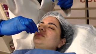 peeling qumico con tca al 25 en midas medical spa