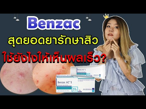 (เช็คสูตร) รีวิว Benzac สุดยอดยารักษาสิว เบนเเซค รักษาสิวอุดตัน สิวอักเสบ ใช้ยังไง I กูรูยาหม่อง
