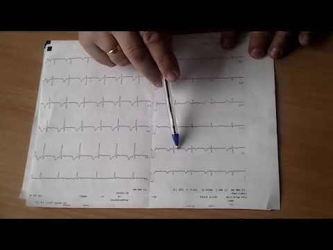 Как посчитать пульс по экг