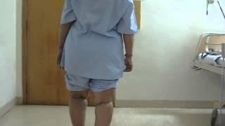 Mrs Jency James -- Bilateral Knee Replacement One Stage Before Surgery