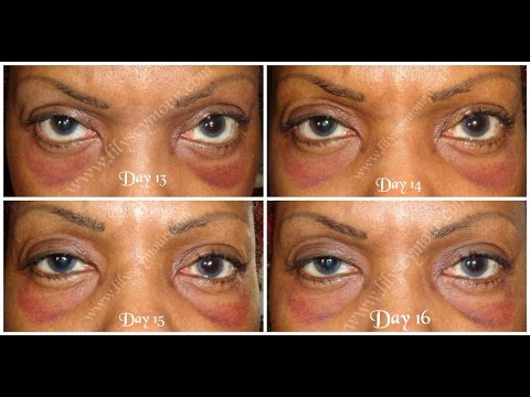 Blepharoplasty day by day photos