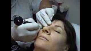Tatuaj ochi make-up artist video Zarescu Dan Clinica Slimart micropigmentare contur ochi