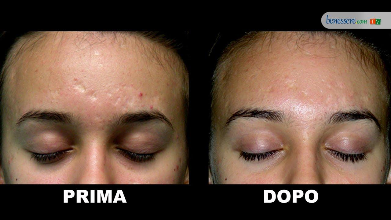 Come togliere da cicatrici di faccia dopo posti