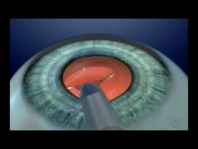 1b7e08d06 Discutiremos a seguir os aspectos dessa cirurgia e os tipos de lentes  intraoculares que podem ser utilizadas. Confira: