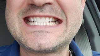 Smile Direct Club Vs Candid Teeth Review (Clear Teeth Aligners)