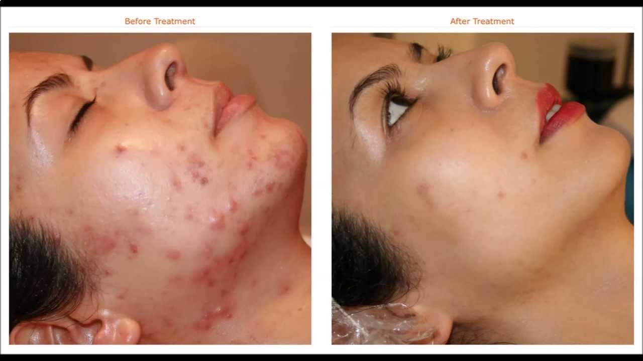 Of Get Acne Best Way To Naturally Rid Overnight