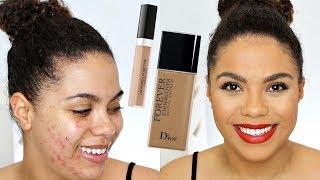 Dior Undercover Foundation Review (oily skin/acne) | samantha jane screenshot 4