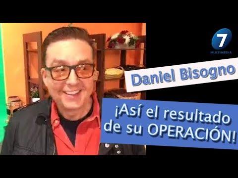 Daniel Bisogno ¡ SE DESTAPA el ROSTRO! después de OPERACIÓN / Multimedia 7