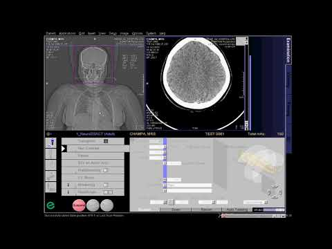 CT Cerebral Angio Full Work Process (SIEMENS) in syngo acquisition workplace
