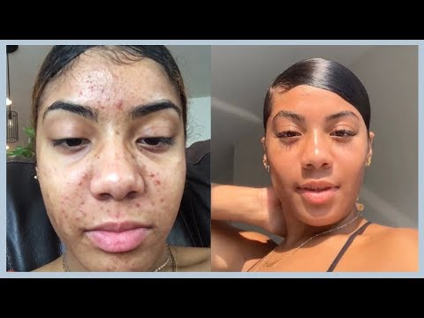 UPDATED SKIN CARE ROUTINE | MASK & EXFOLIATORS FEATURING RADIANCE SPIN-CARE SYSTEM BRUSH
