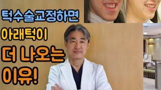 턱수술교정이야기(양악수술, 하악수술. 턱수술교정하면 …
