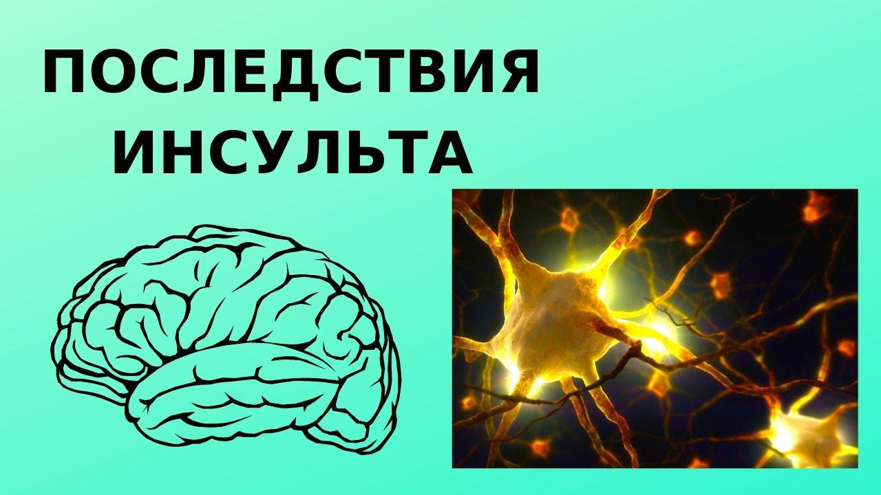 Последствия инсульта: чем грозит человеку инсульт ...