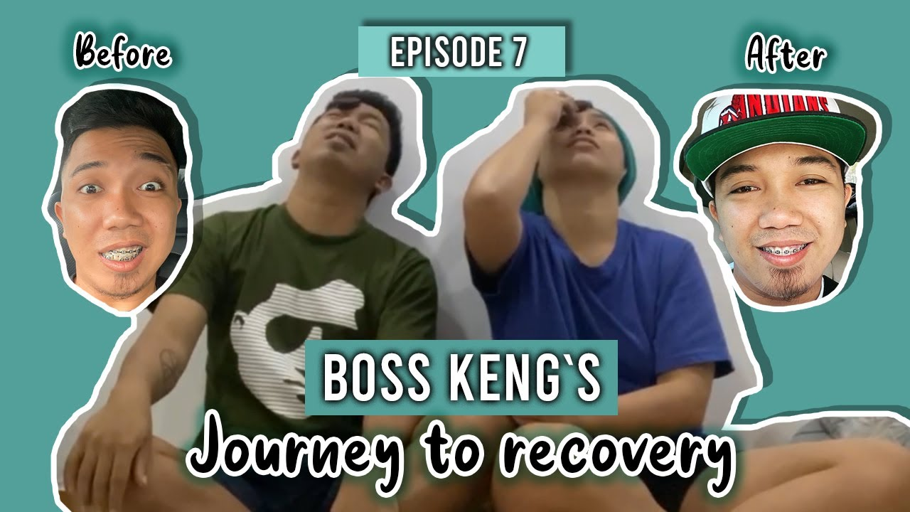 Boss Keng`s Bells Palsy Journey by Neneng Lameg