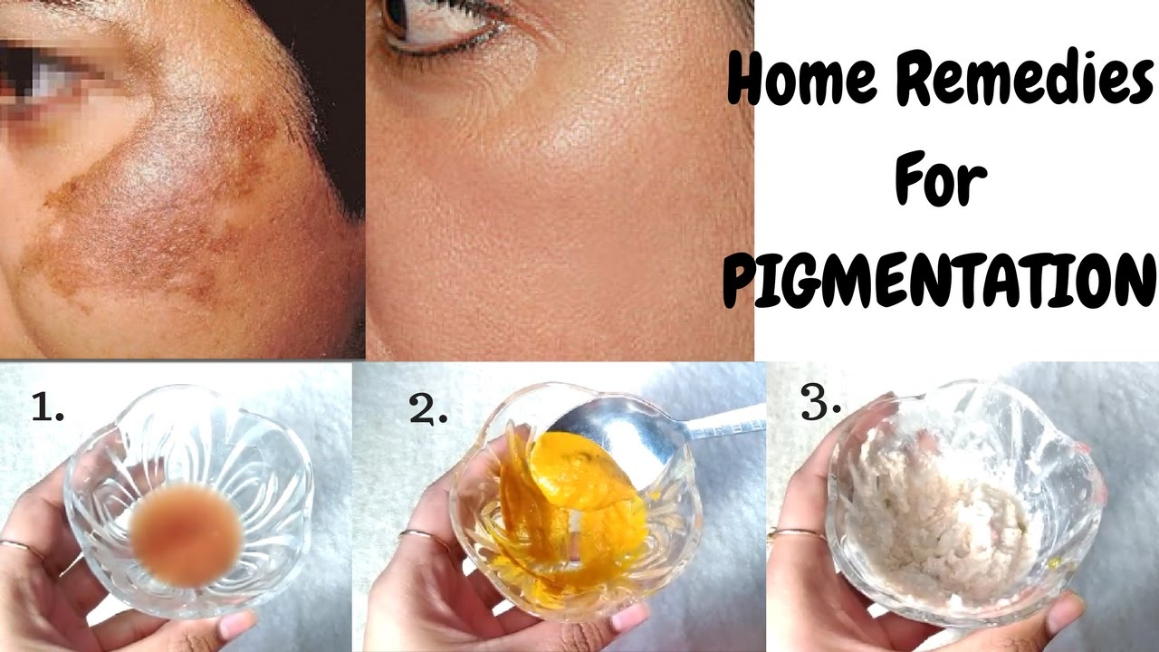 How To Get Rid Of Pigmentation On Face Naturally