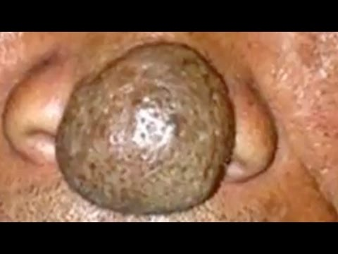 Sebaceous Cyst on Nose & Surgical - 18.1KB