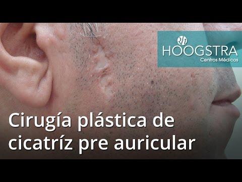 Cirugía plástica de cicatríz pre auricular (16165)
