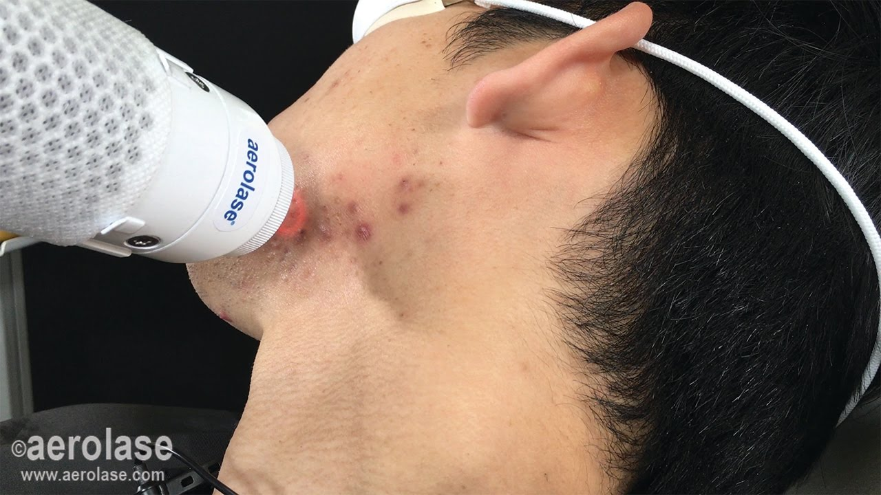 Testimonial & Demo | NeoClear Acne Treatment on Asian Skin