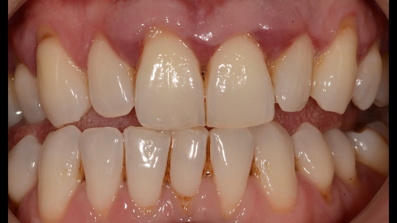 periodontal disease How to treat periodontal disease periodontal disease is a serious bacterial  infection of the gums that, if left untreated, will eventually destroy.